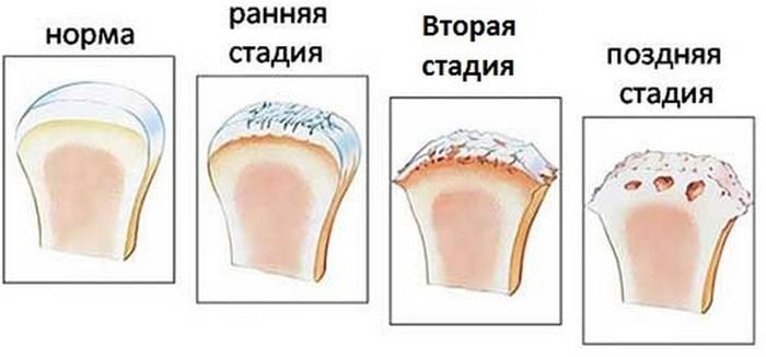 Стадии развития артроза (первые две стадии протекают крайне благоприятно)