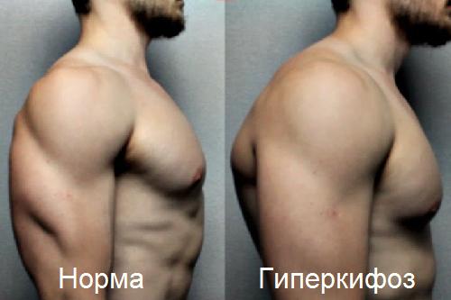 Нормальное положение позвоночника и гиперкифоз (не запущенный)