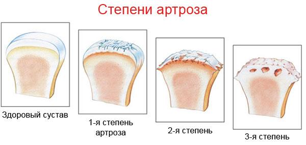 Изменения в структуре хрящевой ткани на разных стадиях артроза