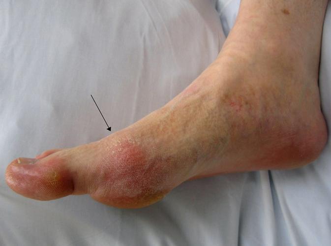 При длительному текущем артрите могут возникать дерматологические осложнения