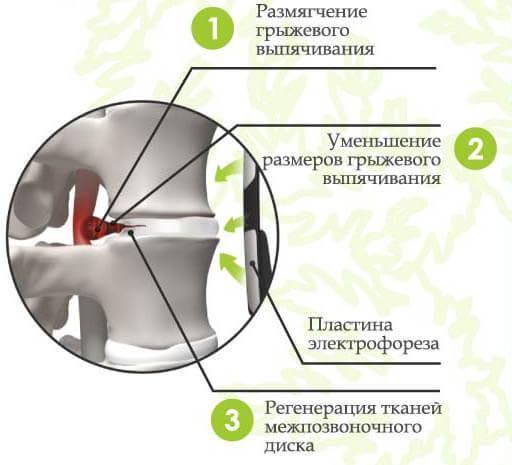Лечебные эффекты, достигаемые электрофорезом