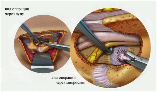 Вид операции по удалению грыжи через лупу и микроскоп