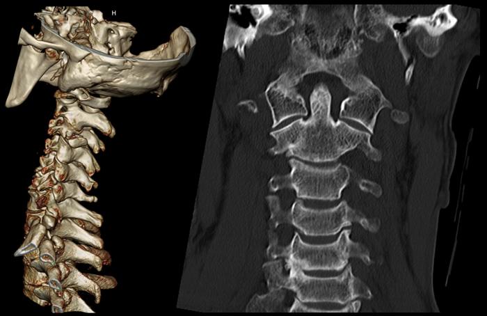 Компьютерная томография шейного отдела позвоночника
