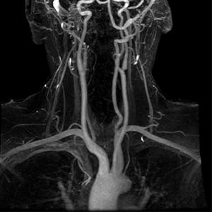 Сосуды на МРТ в режиме ангиографии