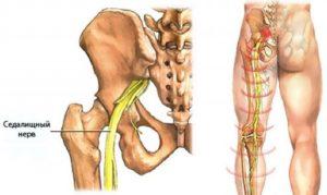 Как сделать массаж при защемлении седалищного нерва