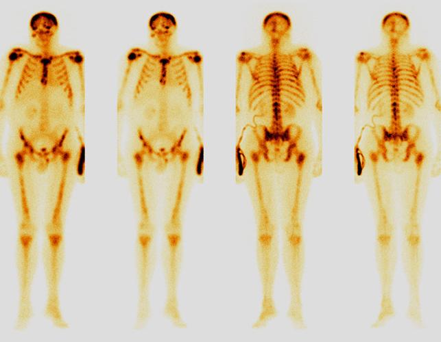 Снимки сцинтиграфии костей