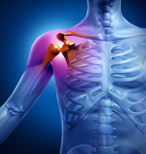 КТ плечевого сустава требуется при его повреждениях