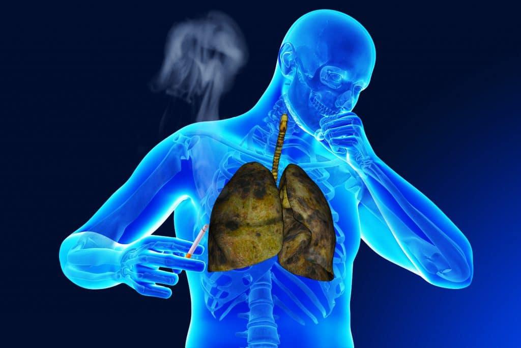 Курение при пневмонии