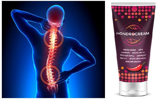 Хондрокрем используется при лечении всех видов остеохондроза позвоночника
