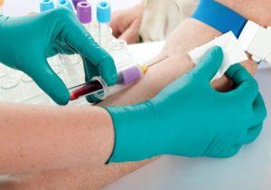 Кровь на анализ берут из вены