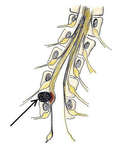 Компрессия спинномозгового канала при дорзальной грыже