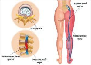 Симптомы и лечение невропатии седалищного нерва