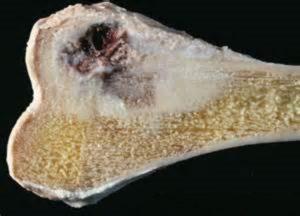 Как лечится гигантоклеточная опухоль кости