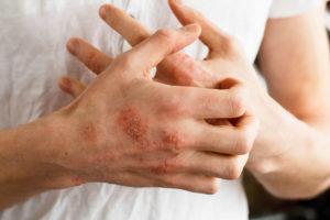 средства народной медицины могут вызывать аллергические реакции