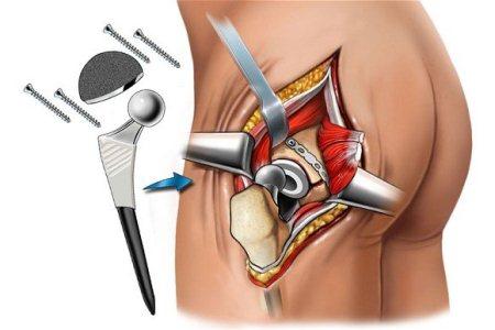 Наиболее эффективным способом оперативного лечения является протезирование сустава, но стоит это дорого
