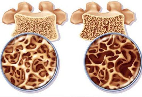Здоровая и пораженная остеопорозом кость
