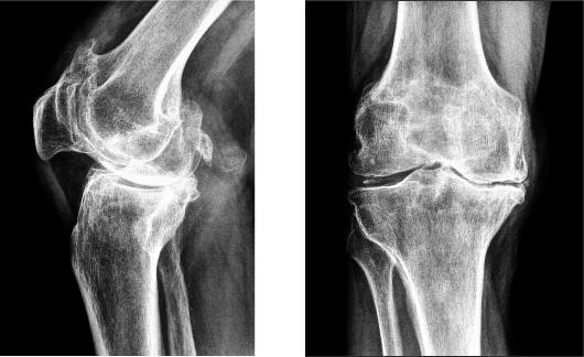 Цифровой рентген коленных суставов