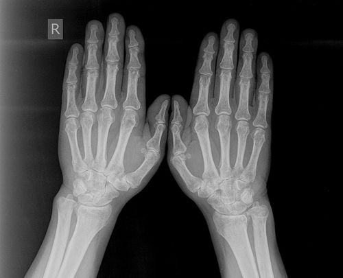 Рентгенография пальцев рук