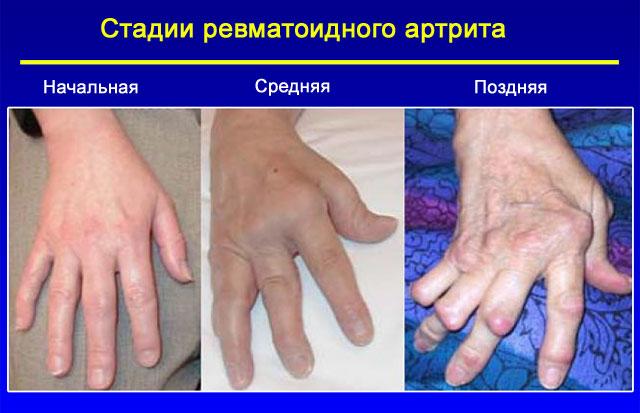 Стадии прогрессирования ревматоидного артрита (визуальные изменения)