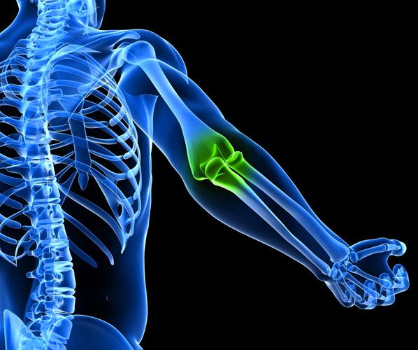 МРТ локтевых суставов требуется при постоянной боли в них