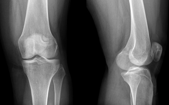 Вывих коленного сустава на рентгенографии