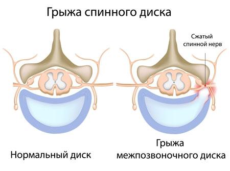 Грыжа спинного диска