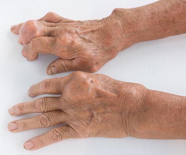 Подагрический артрит очень часто сопровождается серьезными деформациями суставов