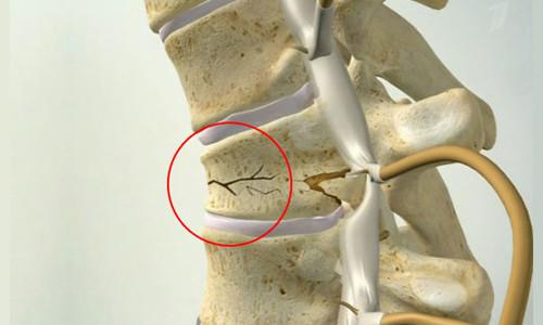 Перелом позвоночника после травмы