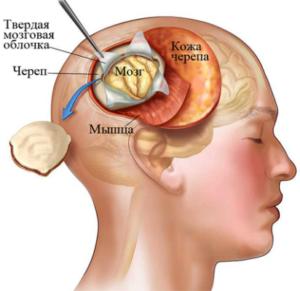 Как проводится удаление опухоли головного мозга