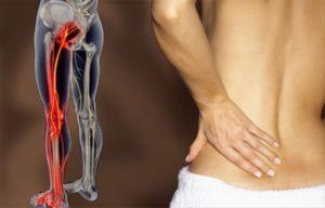 Симптомы и лечение ишиалгии седалищного нерва