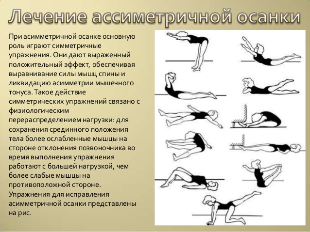 Лечение асимметричной осанки при сколиозе
