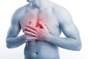 Симптомы и лечение межреберной невралгии грудной клетки