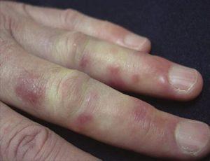 Пораженная сыпью рука