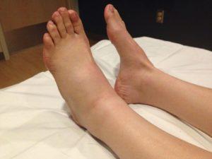 Почему может появиться опухоль на ноге и лечение