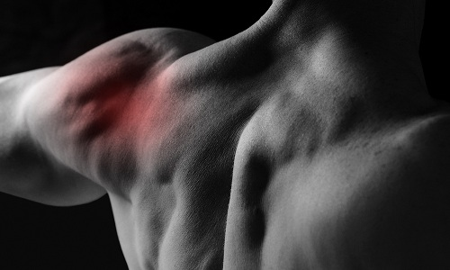 При подвывихе плеча наблюдаются сильные боли