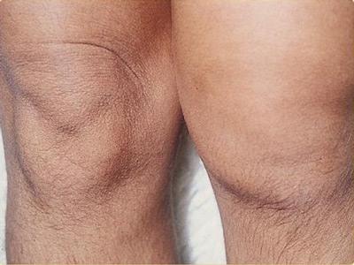 Отек колена при артрите