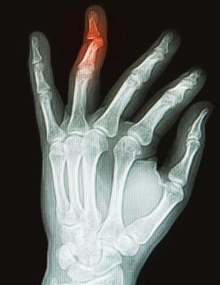 Вывих пальца на рентгенографическом снимке