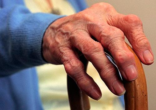 Артрит чаще всего поражает людей старшей возрастной группы (старше 55 лет)