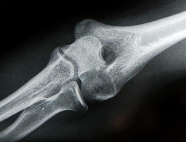 Локтевой сустав на рентгеновском снимке