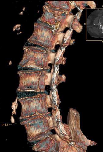 Компьютерная томография поясничного отдела позвоночника