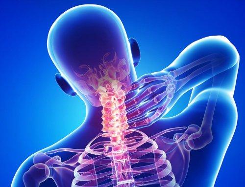 Шейный остеохондроз часто приводит к синдрому позвоночной артерии
