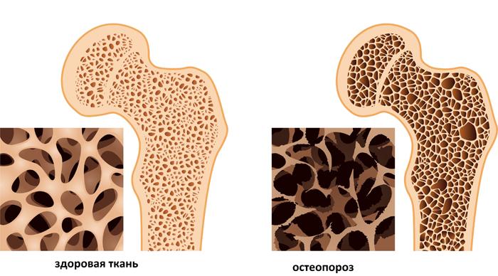 Остеопороз — частая причина перелома позвоночника