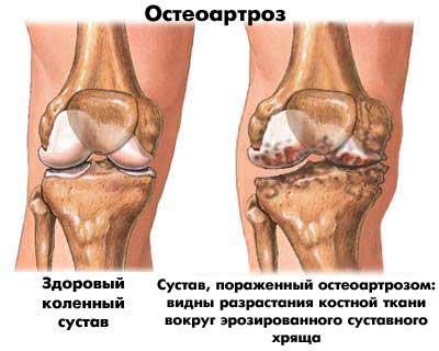 КТ позволяет обнаружить остеоартроз колен