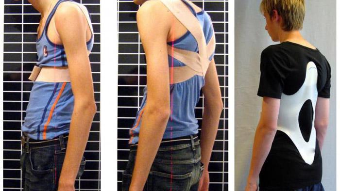 Не запущенные формы гиперкифоза успешно лечатся ортопедическим корсетом или бандажом