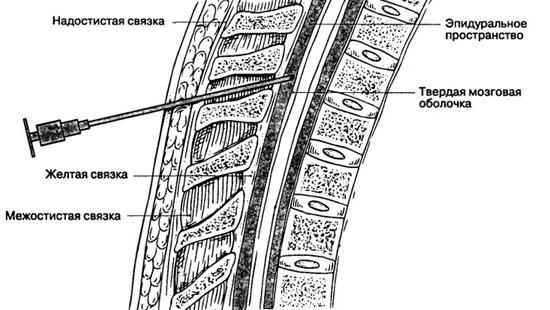 Схема проведения спинальной анестезии
