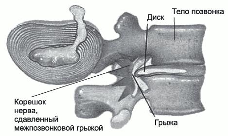 Анатомия пораженного грыжей позвоночника