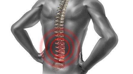 Хронические боли — основное показание к вапоризации грыжи