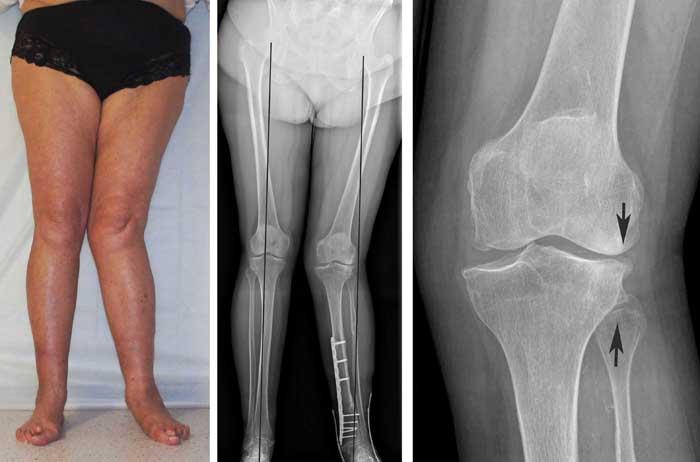 Деформативные поражения колен на рентгенографическом снимке