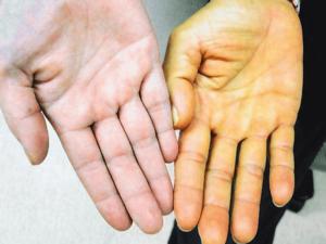 Желтушность кожных покровов