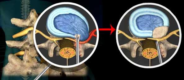 Компрессия спинномозговых нервов при грыже позвонка